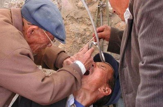Gatu-tandläkare i Kina. Aj!